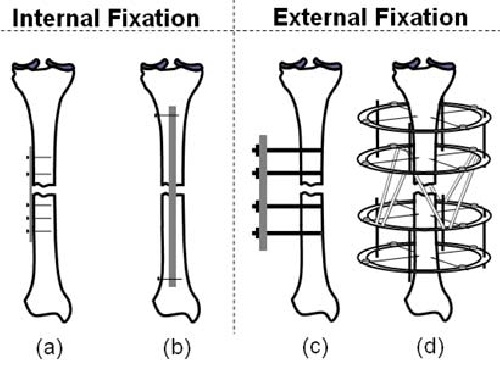 دانلود پاورپوینت Fracture Fixation Internal & External